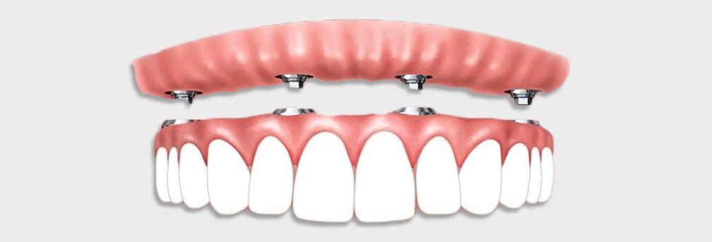 implant-header