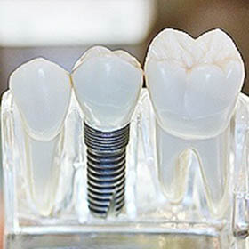 dental-implants-small